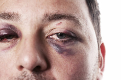 Illustration of Overcoming Bruises In Swollen Eyes And Cheeks?