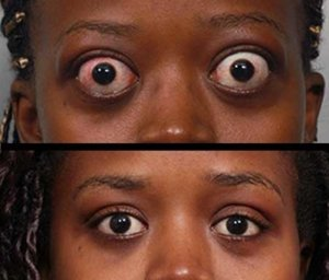 Illustration of Can The Protrusion Of The Eye In People With Hyperthyroidism Return To Normal?