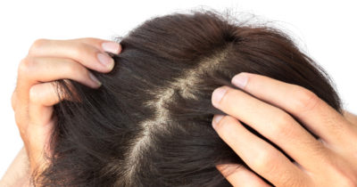 Illustration of Whether Gray Growths Can Make Your Scalp Itchy?
