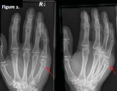 Illustration of Hands Hurt After Hitting The Wall?