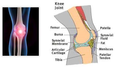 Illustration of Pain In The Knee Joints After Sprains?