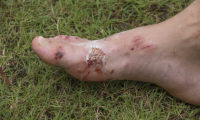 Illustration of Treatment Of Foot Wounds Caused By Broken Glass?
