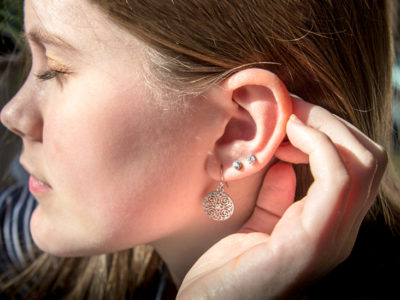 Illustration of The Back Of The Ear Is Often Itchy, Dry And Blistered?