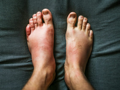 Illustration of The Face, Stomach And Feet Are Swollen After Taking The Drug?