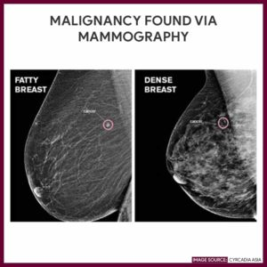 Illustration of Explanation Of The Results Of The Mammography Examination?