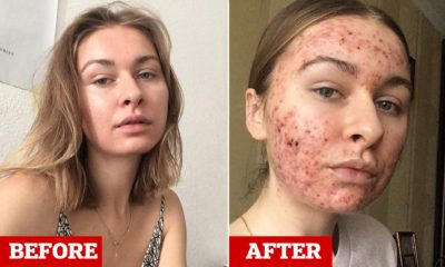 Illustration of Drastic Weight Loss Accompanied By Growing Pimples On The Face?
