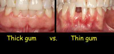 Illustration of The Teeth Look Long And The Gums Look Thin. What Is Gum Inflammation?