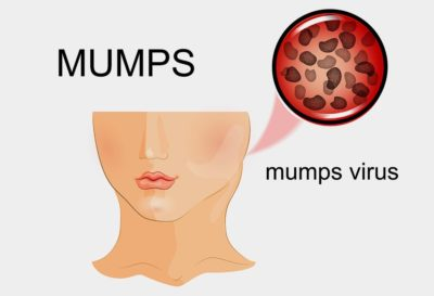 Illustration of The Danger Of Mumps In Young Pregnant Women?