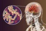 Treating Tuberculosis That Has Spread To The Brain?