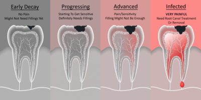 Illustration of Overcoming Pain In Decaying Teeth?