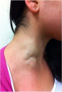 Illustration of Eliminates Visible Neck Protrusions When Swallowing?