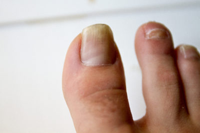 Illustration of Clean The Big Toe Affected By The Hook Using Alcohol?