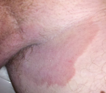 Illustration of Itching To Black In The Groin Skin?