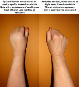Illustration of The Skin On The Back Of The Left Hand Has A Blistered Bump?