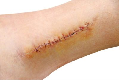 Illustration of Swelling At The Suture Scar?