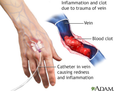 Illustration of The Cause Of The Blood Vessels Used In The IV Feels Smaller?