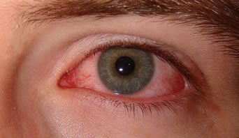 Illustration of The Eyes Are Often Blurry And Itchy?
