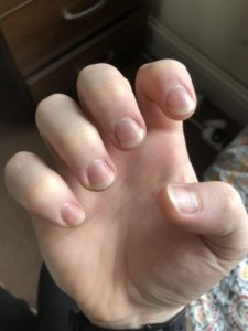 Illustration of How Long Does It Take To Grow Nails After Cutting?