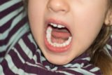 Permanent Teeth Have Grown Even Though The Baby Teeth Have Not Come Off?