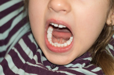Illustration of Permanent Teeth Have Grown Even Though The Baby Teeth Have Not Come Off?