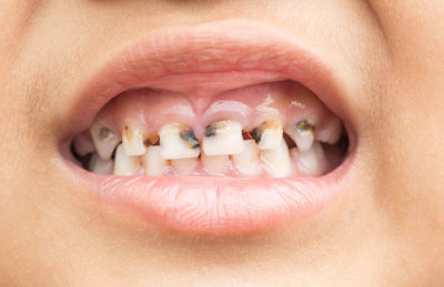 Illustration of Treating Badly Damaged Teeth At A Young Age?