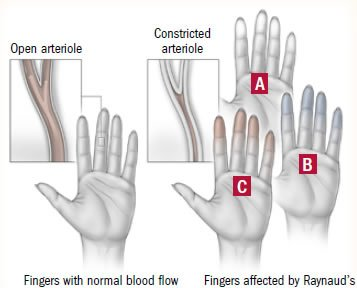 Illustration of The Problem Of Not Moving Your Fingers Upwards?