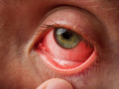 Illustration of Associated Injury To The Eye With Uterine Disease?
