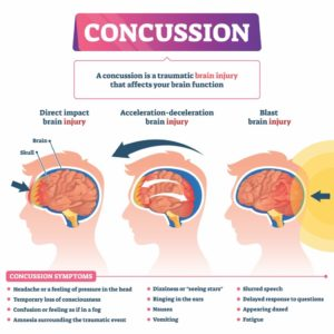 Illustration of What Activities Are Good For People With Mild Concussions?