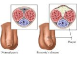 Causes And Treatment Of Tendon In The Penis?