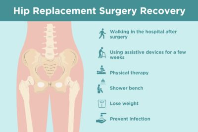 Illustration of Hip Fracture Recovery Tips?