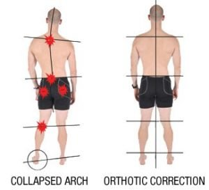 Illustration of Causes Of Lower Back Pain To The Feet?