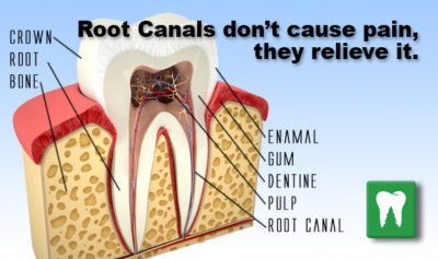 Illustration of How To Deal With Pain After Root Tooth Care?