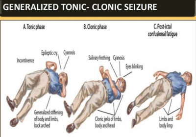 Illustration of The Difference Between Tonic And Clonic Seizures?