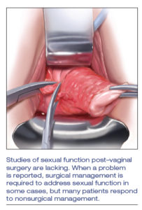 Illustration of Can You Have Sex While Recovering From Condyloma Surgery?