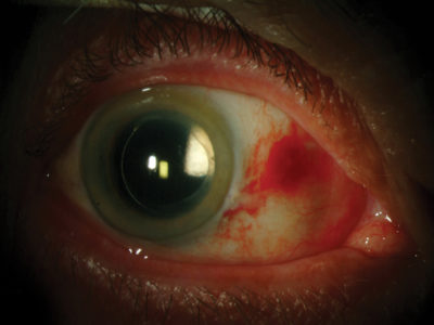 Illustration of The Stain Came Back After Eye Surgery?