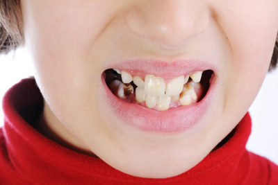 Illustration of How To Deal With Black Teeth In 11 Year Olds?