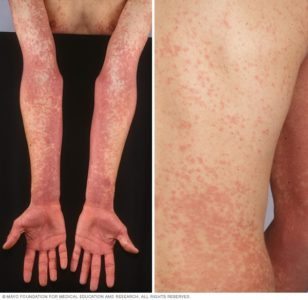 Illustration of Fever Accompanied By Dizziness And Blisters Appear On The Thighs?