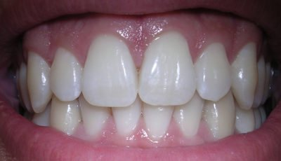 Illustration of Changes In Tooth Arrangement?