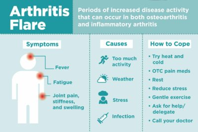 Illustration of Causes Of Joint Pain Are Prolonged For Up To 2 Weeks?