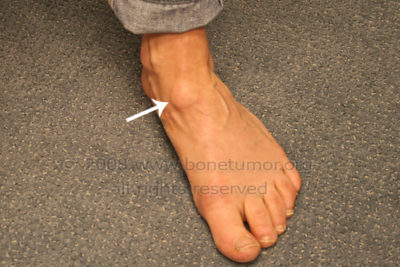Illustration of Lumps In The Area Under The Ankles?
