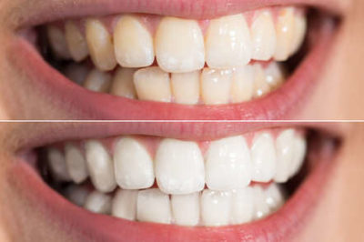 Illustration of A Genetic Solution To Yellow Teeth?