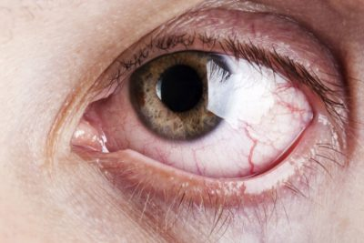 Illustration of Causes Of Sore And Itchy Eyes?