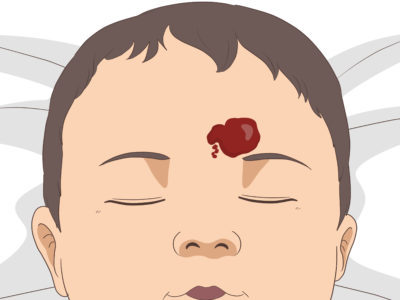 Illustration of How To Remove A Birthmark From Head To Cheek For A 3 Month Old Baby?