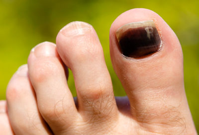 Illustration of The Cause Of The Finger Nails Blackish Purple?