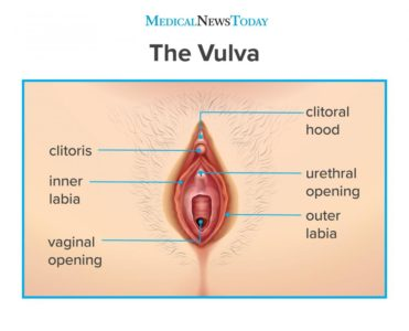 Illustration of Causes Of Pain And Deformity Of The Vaginal Lips?