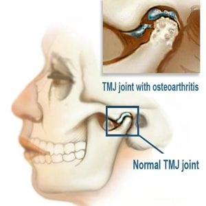Illustration of How To Deal With The TMJ (temporomandibular Junction) In Uneven Teeth?