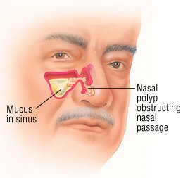 Illustration of Lumps Inside The Nose Accompanied By Decreased Smell And Shortness Of Breath When Tired?
