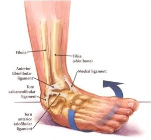 Illustration of How To Deal With Torn Ligaments?