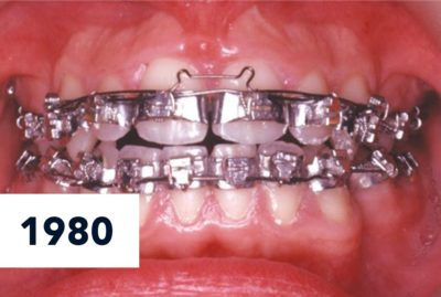 Illustration of Can Braces Be Done On Teeth That Are Untidy And Have Fillings?