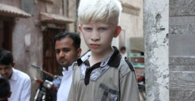 Illustration of Can Genetic Diseases Such As Albinism Be Stopped For Future Generations?